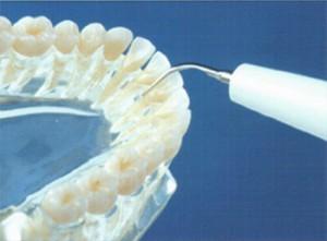 Détartrage Cabinet dentaire Beucher Moëlan sur Mer