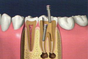 La pulpe est extraite des canaux et remplacée par des produits antiseptiques, c'est la dévitalisation.